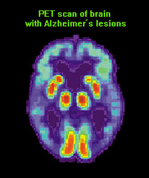 PET-scan-Alzheimers