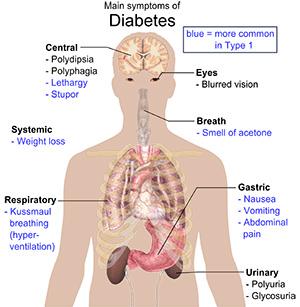 symptoms-diabetes